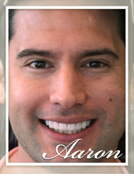 Smile Makeover - Aaron
