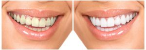 teeth-whitening-beverly-hills