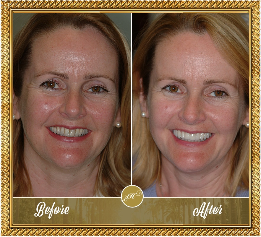 Veneers-before&after