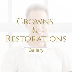 Crowns-and-Restorations dentist