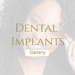 cheap Dental-Implants