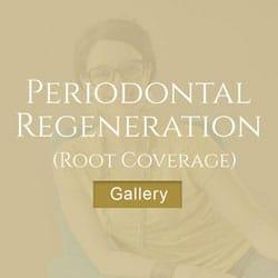 Periodontal-Regeneration LA