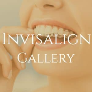 invisalign braces in LA