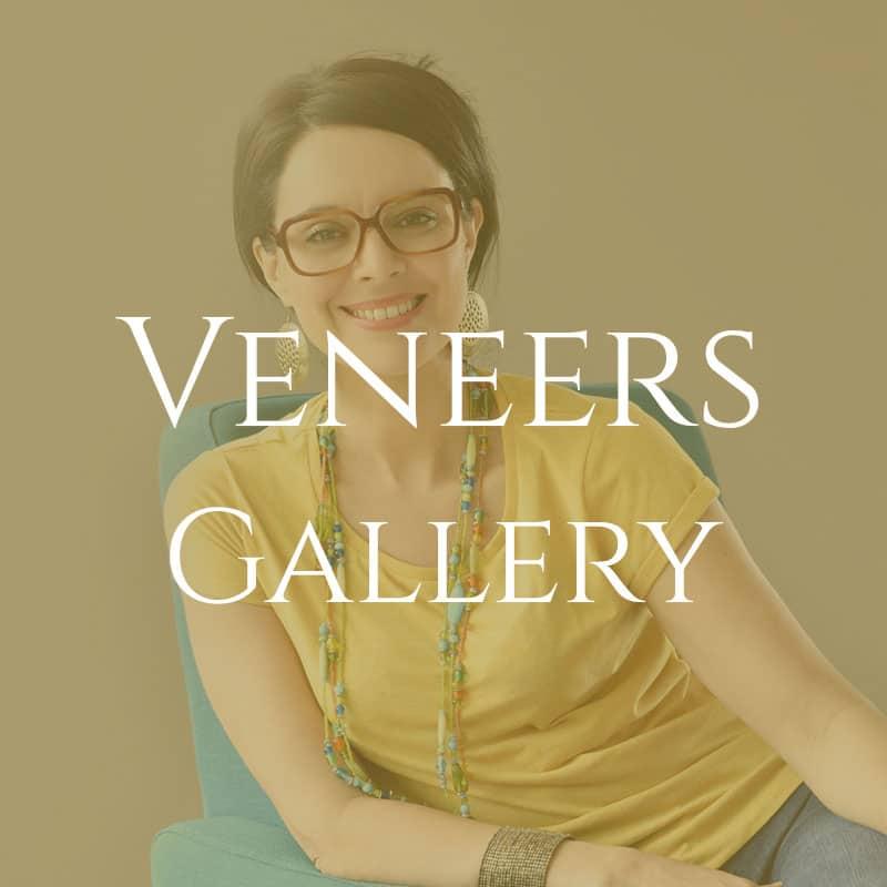 veneers-brown