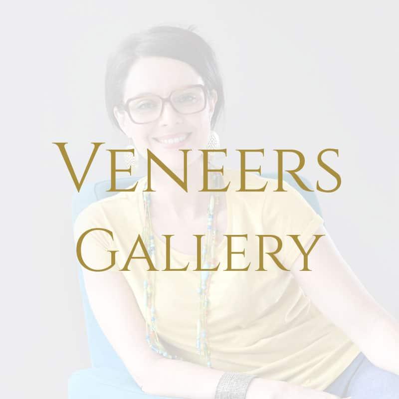veneers-white