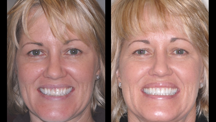 affordable dentist in LA