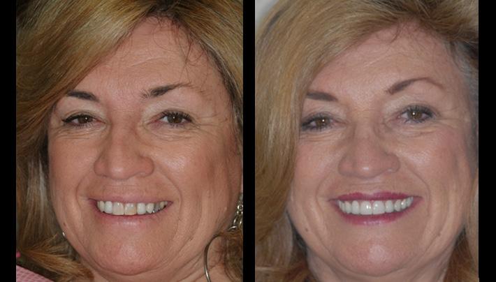 veneers - beverly hills dentistry