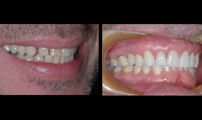 testimonial beverly hills dentistry