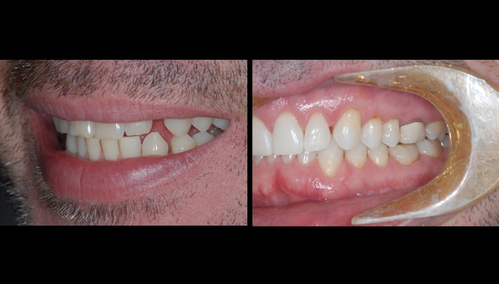 William Cruse invisalign right side