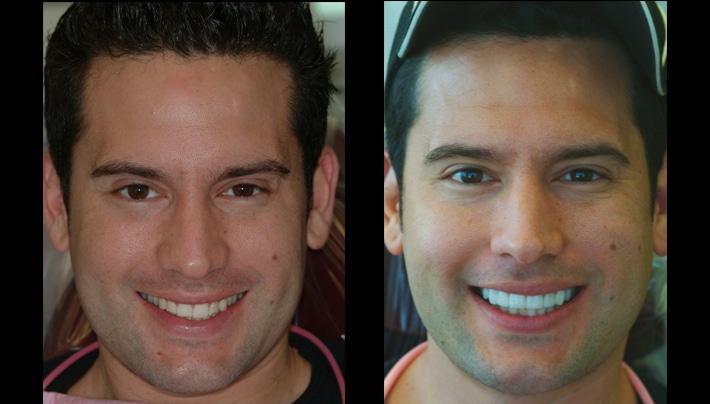 Aaron veneers fullface