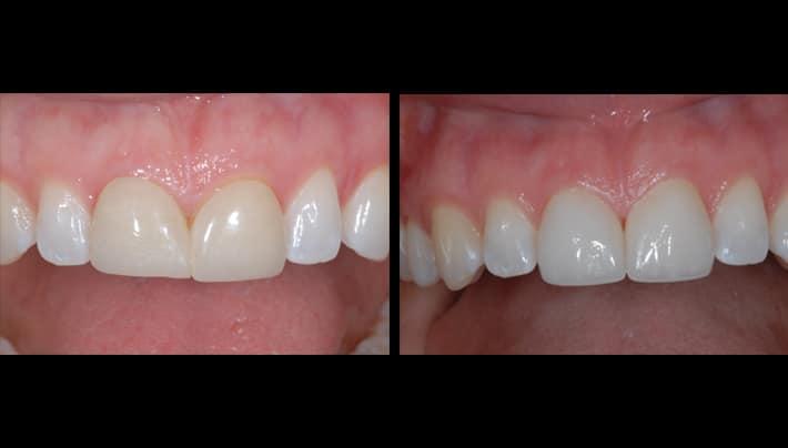 dental implants in LA