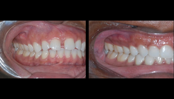 Invisalign, clear braces -Beverly Hills