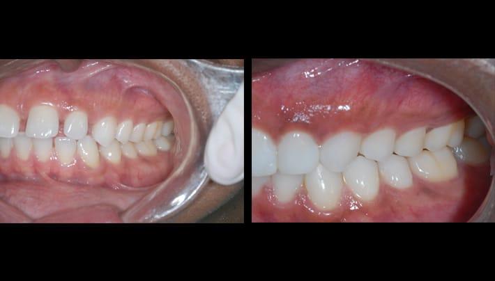 dental procedure - beverly hills dentistry