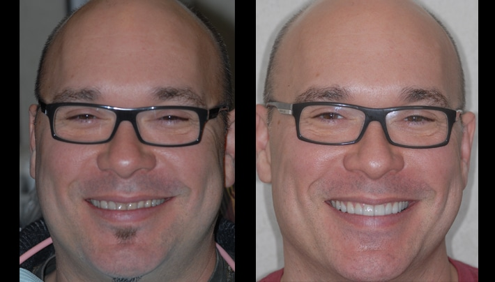 Lee face veneers invisalign