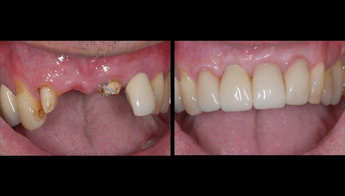 implants - beverly hills dentistry