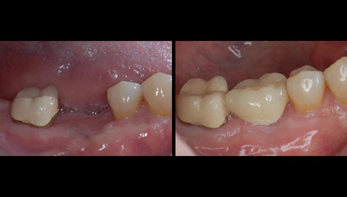 dental implants - beverly hills dental
