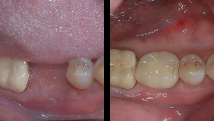 Implants beverly hills cosmetic dentistry