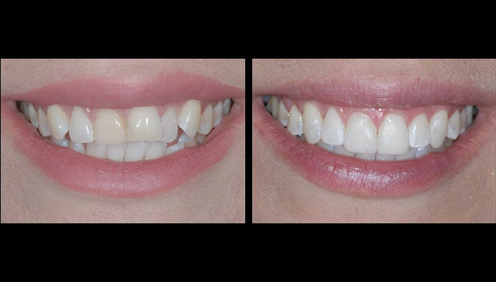 Theresa smile invisalign
