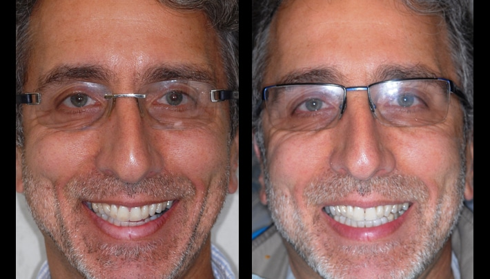 smile makeover beverly hills