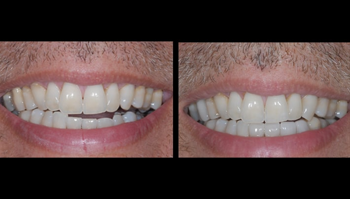 invisalign - beverly hills dentistry