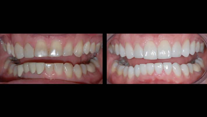 teeth makeover - dental clinic