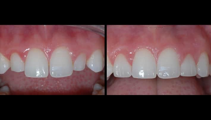 clear braces - beverly hills denstistry