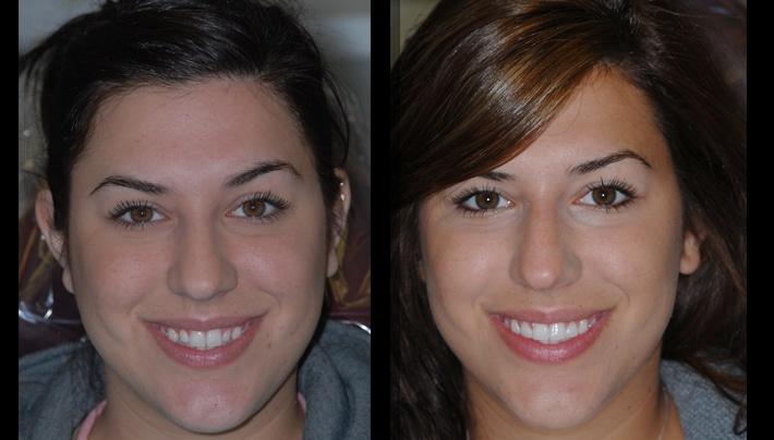 dental testimonial beverly hills dentistry