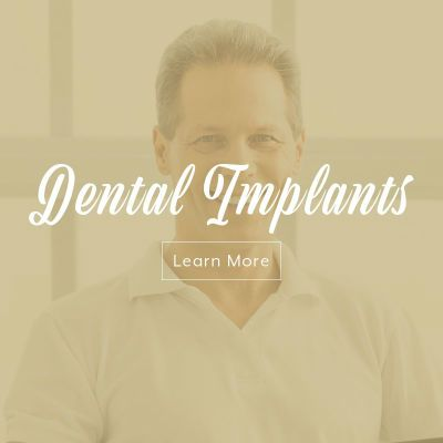 Dental Implants Gold