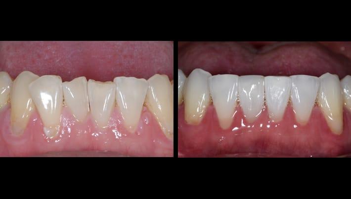 John invisalign bottom teeth