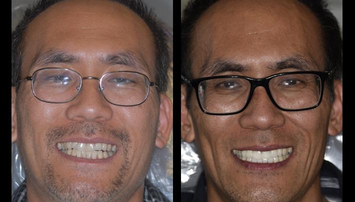 invisalign testimonial dentistry