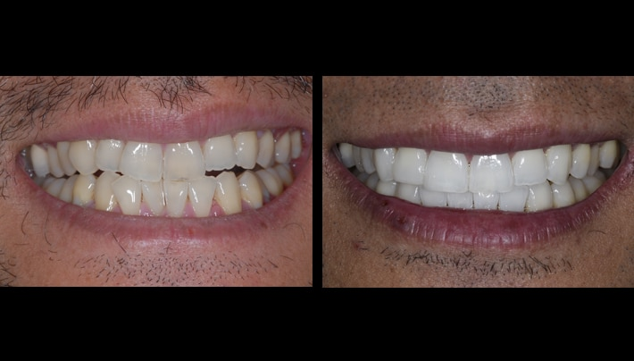 invisalign dentist clear braces