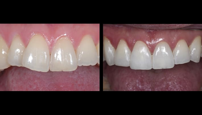 John invisalign upper teeth