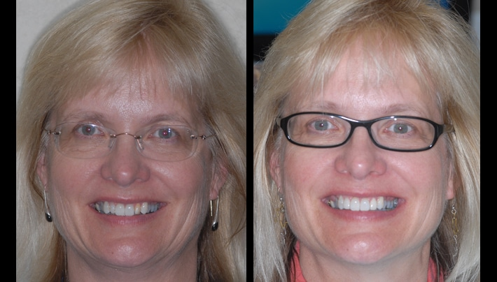 Kim Roush Veneers face