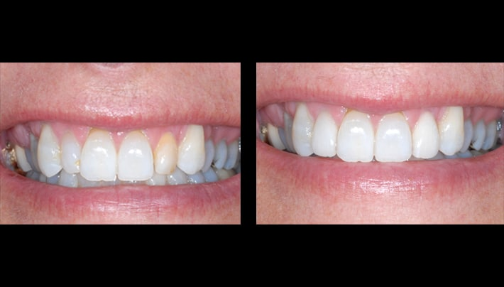 Kim Roush Veneers teeth