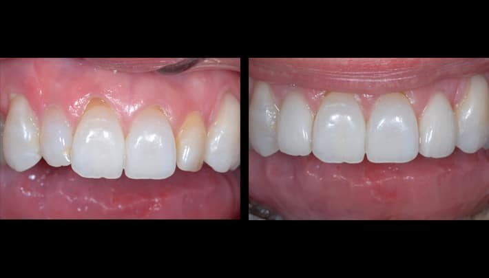 Kim Roush Veneers upper teeth