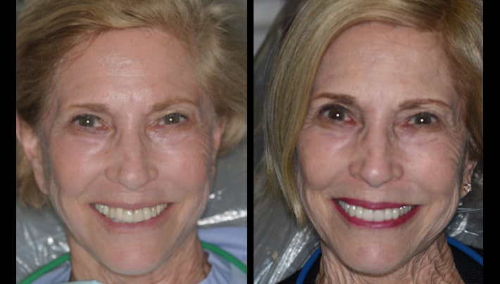 Judi Veneers full face