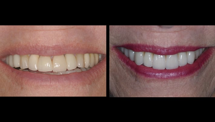 Judi Veneers teeth