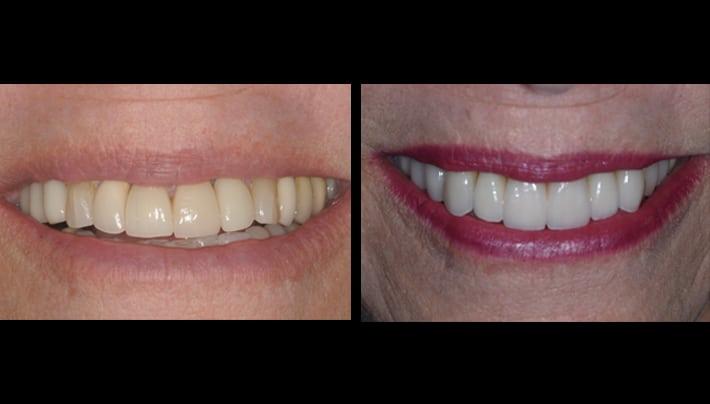 testimonial at beverly hills dentistry