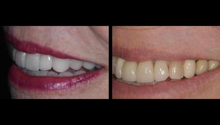 testimonial - beverly hills dentistry