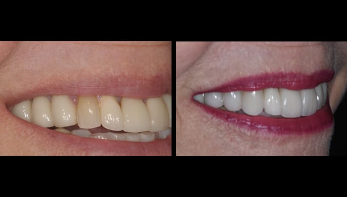 before and after - dentistry beverly hills
