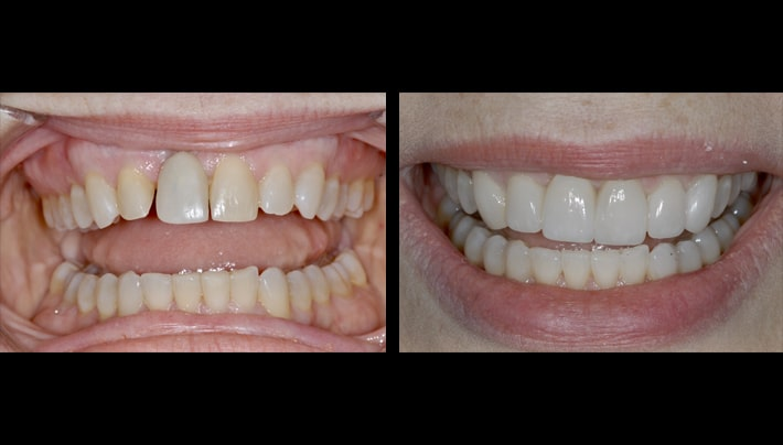 Dental implant Schapa smile teeth