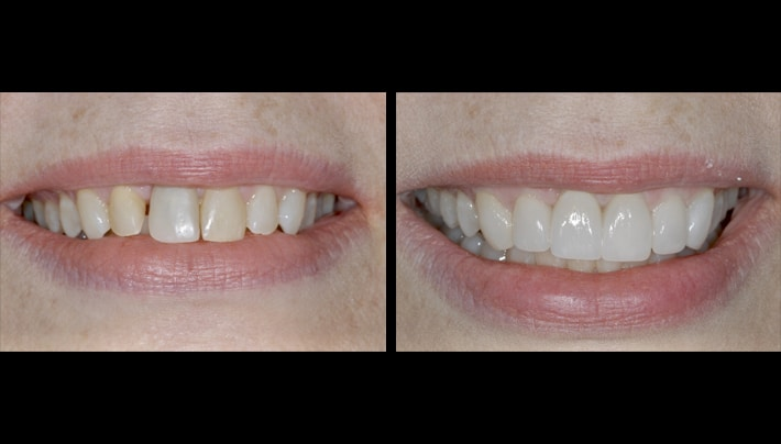 Dental implant Schapa smile