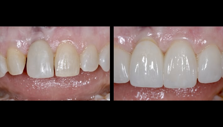 Dental implant Schapa teeth